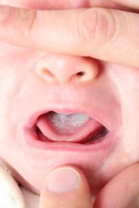 Photo - champignons dans la bouche de bébé - muguet