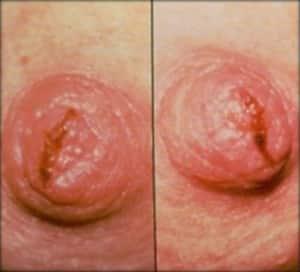 Photo - crevasse sur le mamelon - allaitement
