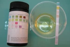 Photo - Test de la présence de protéines ou de sucre dans les urines de la femme enceinte