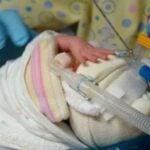 Photo- Bébé prématuré : Qu'est-ce que la prématurité?